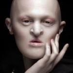 RETRATO: Melanie Gaydos, modelo por su enfermedad